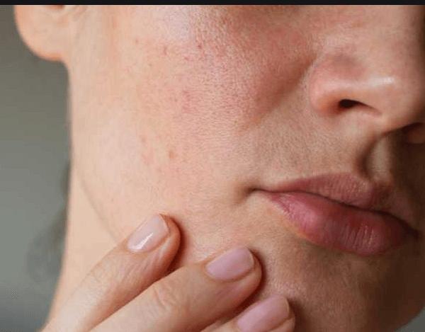 piele grasa remedii si demachiant potrivit